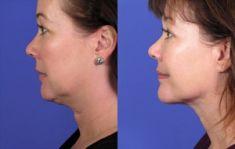 Lifting du cou - Lifting du cou: technique SMAS avec enlèvement de peau La technique SMAS supplémentaire du cou retend et embellit le cou.
