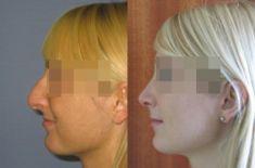 Korekcja nosa (Operacja nosa) - Zdjęcie przed
