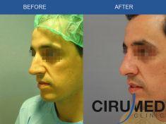 Dr. Alexander Amir Aslani - Foto Antes de - Dr. Alexander Amir Aslani