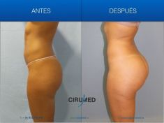 Enlargement and shaping of buttocks and hips - Photo before - Dr. Alexander Amir Aslani