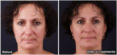 Non Surgical Lift (Exilis) - Photo before