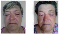 Neinvazivní lifting - fotka před - Brandeis Clinic by Lucie Kalinová