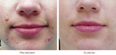 Laser acne treatment - Photo before - Laserová dermatologická klinika ALTOS