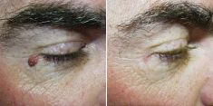 Odstranění znamének, kožních výrůstků - fotka před - Brandeis Clinic by Lucie Kalinová