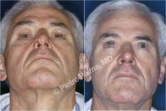 Rhinoplasty (Nose Job) - Photo before - Prof. Pietro Palma MD, FACS