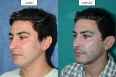 Dr. Alfredo Fernández Blanco - Rinoplastia cerrada primaria