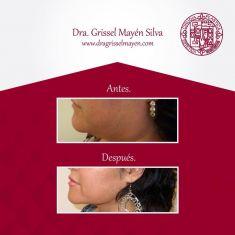 Liposucción de la papada - Foto Antes de - Dra. Grissel Mayen