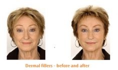 Dermal fillers - Photo before - Dr. Vincente Rodrigo