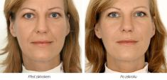 Botulinum toxin - Wrinkle Removal - Photo before - Laserová dermatologická klinika ALTOS