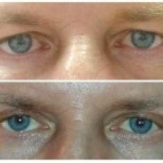 Operace horních víček - Muž, 56 let, plastická operace horních víček