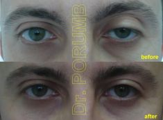 Eyelid surgery (Blepharoplasty) - Photo before - Dr. Serban Porumb