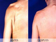 Lipotransferencia de grasa (lipofiling) - Foto Antes de - Clínica Planas