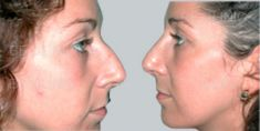 Rhinoplasty (Nose Job) - Photo before - Be Clinic