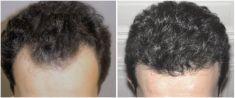 Przeszczep włosów - transplatacja włosów - Zdjęcie przed - dr Krystyna Lubelska