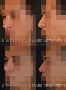 Rhinoplastie secondaire - Cliché avant - Docteur Victor Medard de Chardon