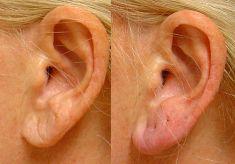 Operace uší (Otoplastika) - fotka před - MUDr. Jana Vybulková Zavadilová