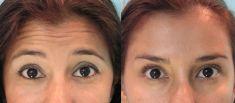 Botox/Dysport - Eliminar arrugas - Foto Antes de - Henríquez Cirurgía Plástica