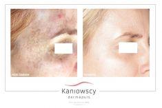 Usuwanie przebarwień i zmian barwnikowych - Zdjęcie przed - Kaniowscy Dermapuls – Centrum Dermatologii Estetycznej i Laserowej