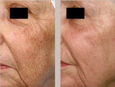 Fotorejuvenation  - Photo before - Klinika ELITE - Centrum Laseroterapii