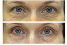 Operace očních víček (Blefaroplastika) - ŽENA, 46 LET, PLASTICKÁ OPERACE HORNÍCH VÍČEK