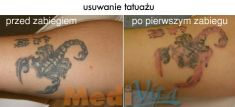 Tattoo removal - Photo before - lek. med. Jacek Ściborowicz - MediVita