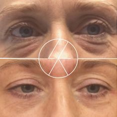 Eyelid surgery (Blepharoplasty) - Photo before - MUDr. Lucie Kalinová PhD.