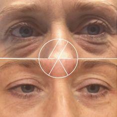 Operace očních víček (Blefaroplastika) - fotka před - MUDr. Lucie Kalinová PhD.