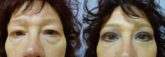 Operace očních víček (Blefaroplastika) - fotka před - MUDr. Kamila Šormová