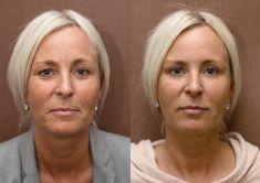 PRP – Plazma terapie (Platelet Rich Plasma) - Klientka podstoupila plazmaterapii jako doplněk kombinovaného angiaging ošetření po operaci horních víček, kdy hluboké vrásky v oblasti čela a rty byly redukovány aplikací botulotoxinu a kyseliny hyaluronové. Ošetření bylo doplněno o plazmaterapii pro celkové nastartování omlazení a obnovy pleti. Na fotografii stav před a po provedených ošetřeních.