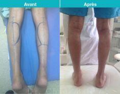 Chirurgie des fesses et des mollets - Cliché avant - Dr Chedi Bali
