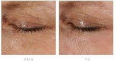 Fractional Laser Resurfacing - Photo before