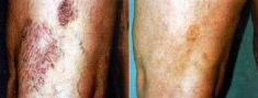 Varicose veins treatment - Photo before - Dr. Dobos Calin