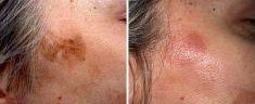 Laser frakcyjny/Fraxel (usuwanie przebarwień, zmian potrądzikowych, odmładzanie skóry) - Zdjęcie przed - Revival Clinic - Klinika Medycyny Estetycznej i Laseroterapii
