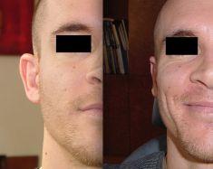 Otoplastie (Chirurgie esthétique des oreilles) - Cliché avant - Dr Frederic Braccini