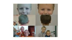 Ear surgery (Otoplasty) - Photo before - MUDr. Radek Lhotský