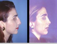 Rinoplastica - Foto del prima - Prof. Michele Roberto