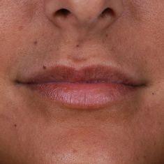 Aumento de labios (lipofilling) - Foto Antes de - Dr. Gustavo Suárez Páez