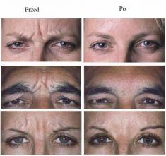 BOTOX® - Zdjęcie przed - Slow Age Centrum Medycyny Estetycznej i Laserowej