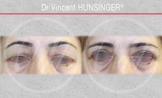 Dr Vincent Hunsinger - superieure 1 mois