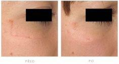 Laser Scar Treatment - Photo before - Klinika YES VISAGE - klinika estetické medicíny a plastické chirurgie