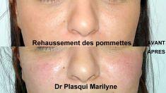 Dr Marilyne Plasqui - Réharmonisation de la partie médiane du visage par injection d