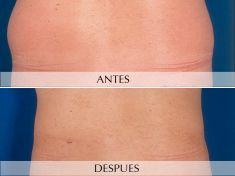 Liposucción - Foto Antes de - Clínica Planas