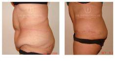 Abdominoplastia - Foto Antes de - Dr. Andres Freschi
