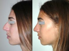 Rhinoplasty (Nose Job) - Photo before - Dr Jacques Buis