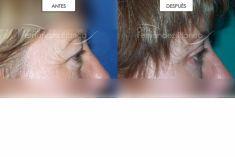 Cirugía de párpados (Blefaroplastia) - Exeresis de Bolsas parpebrales y piel redundante en parpados.