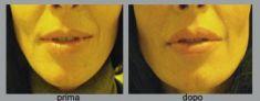 Aumento labbra - Foto del prima - Dott. Luca Leva Chirurgo Plastico