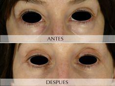 Cirugía de párpados (Blefaroplastia) - Foto Antes de - Clínica Planas