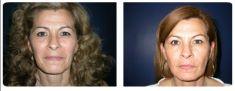 Botox/Dysport - Eliminar arrugas - Foto Antes de - Dr. Juan Carlos Monroy Mejia