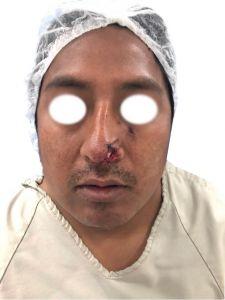 Facial Reconstructive Surgery - Photo before