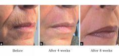 Vyhlazení vrásek - fotka před - Laserová dermatologická klinika ALTOS